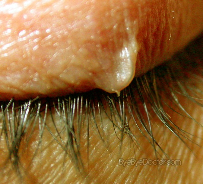 Ingrown Eyelash