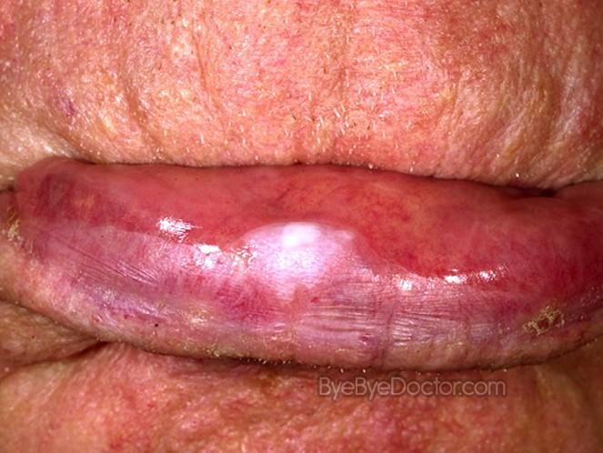 Leukoplakia - Pictures, Symptoms, Causes, Treatment