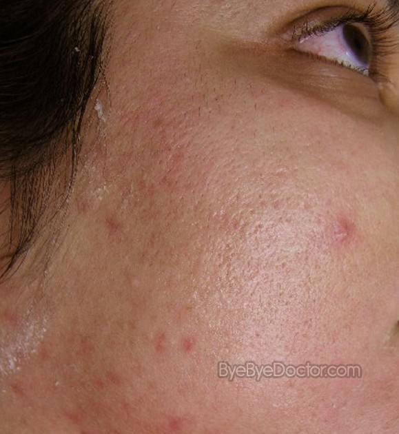 Images of Sebaceous Hyperplasia Treatment - #rock-cafe