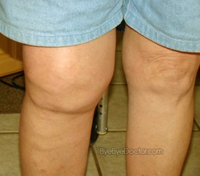 Swollen Knee Causes Treatment Pain Relief Pictures