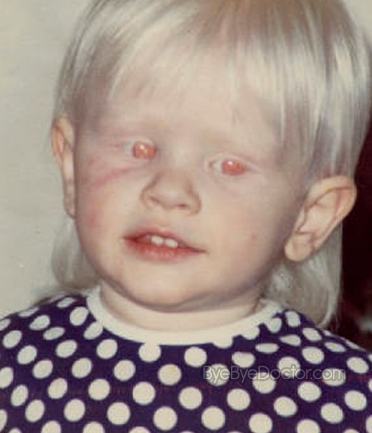 albinism pictures