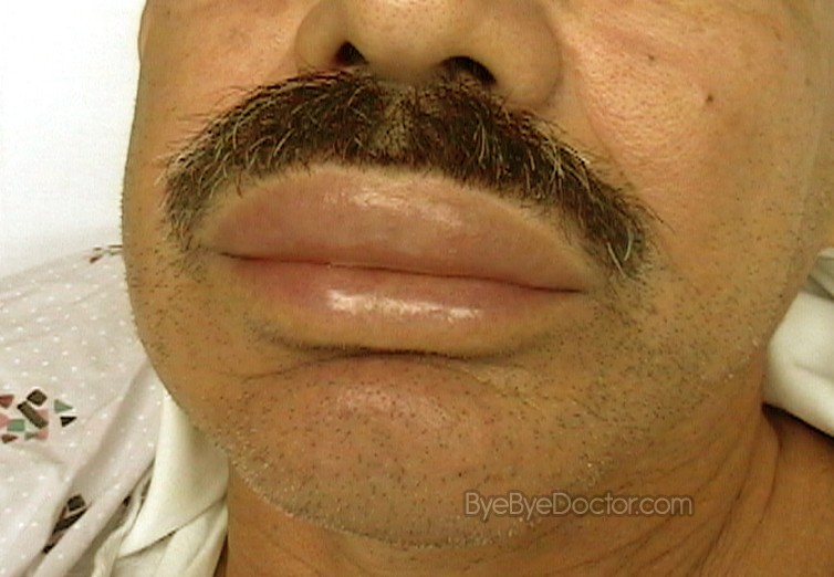 Angioedema - Types, causes, symptoms ... - WebMD Boots