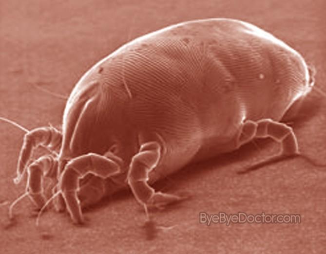 Dust Mites Pictures Allergy Symptoms Rash Treatment