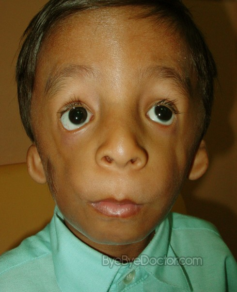 treacher collins syndrome pictures