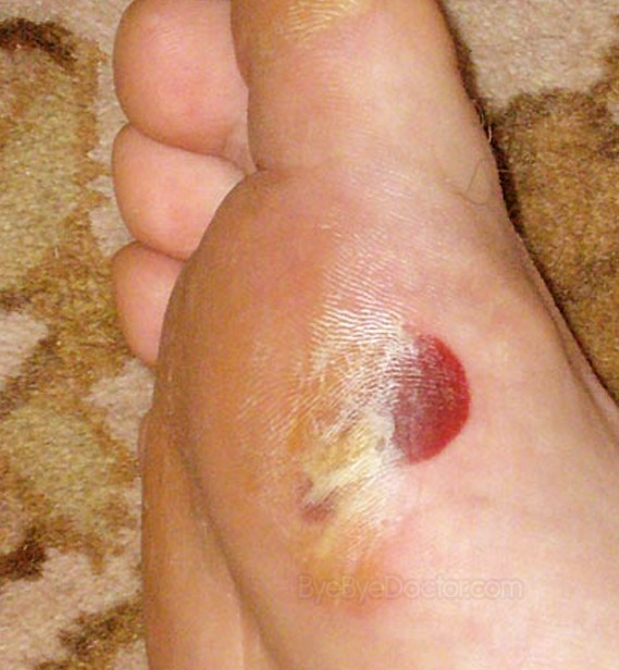 blood blisters pictures