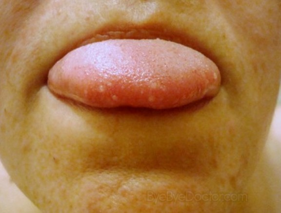 Canker Sore on Tongue - Treatment, Pictures, Symptoms ...