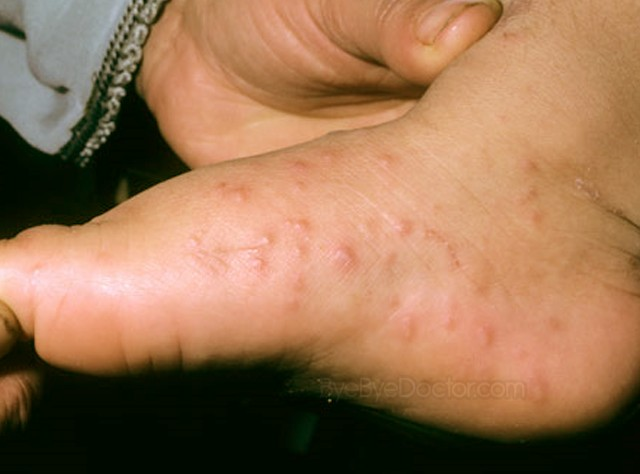 hand foot and mouth disease pictures