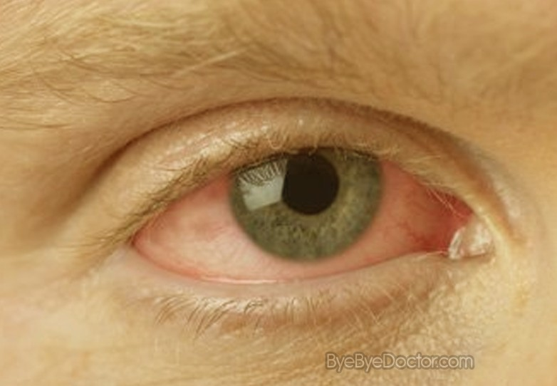 Pink Eye: Pictures, Symptoms, Treatment, Contagious, Remedies