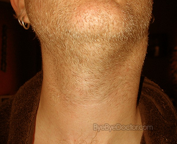 swollen glands in neck pictures