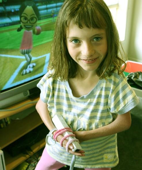 McKie Splints  Hand amp Thumb Splint for Cerebral Palsy