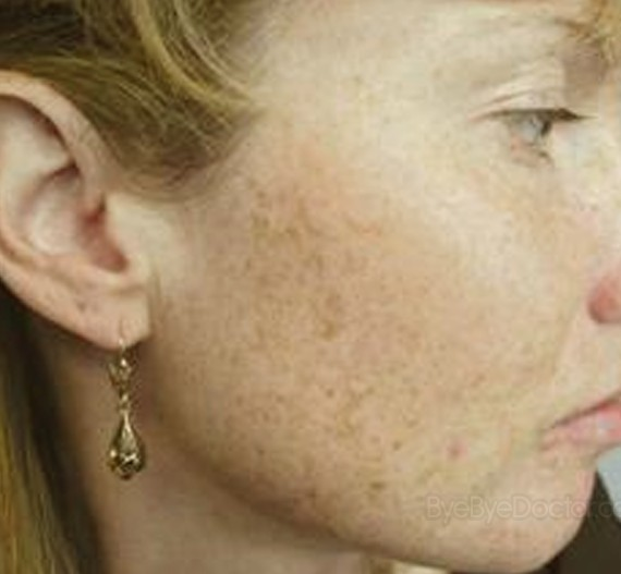 Brown Spots on Face - Pictures, Causes, Prevention