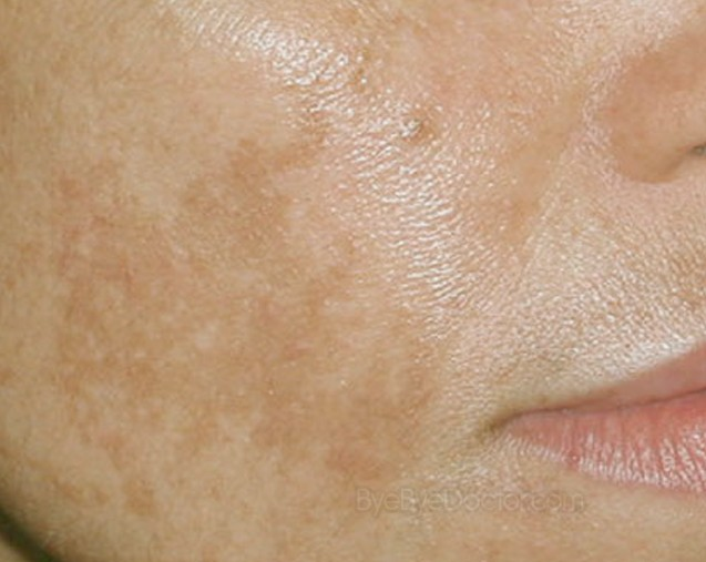 Brown Spots on Face - Pictures, Causes, Prevention, Treatment, Home