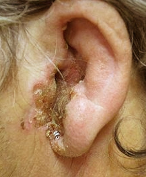 ear canal infection pictures