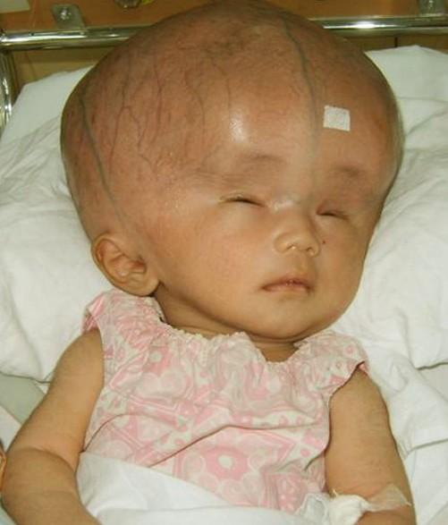 Adult Hydrocephaly 32