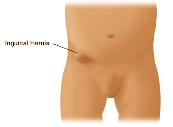 Inguinal Hernia Pictures