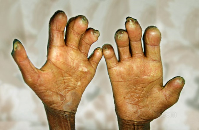 leprosy pictures