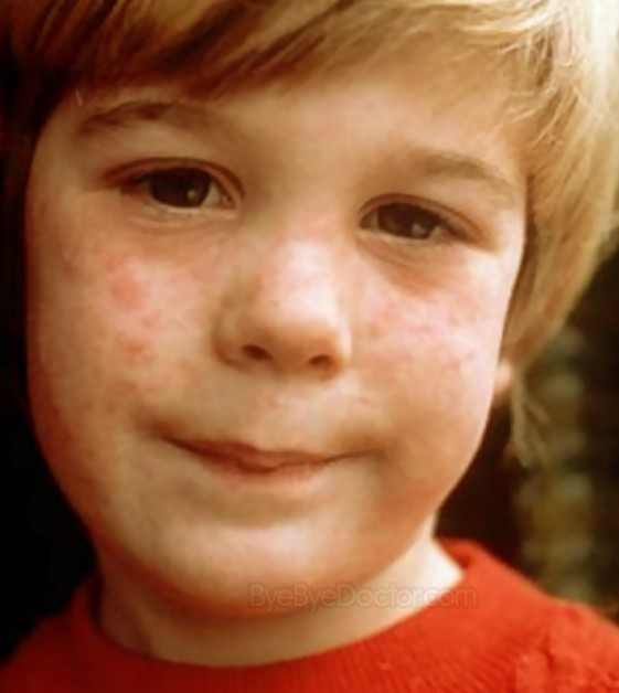 measles rash pictures