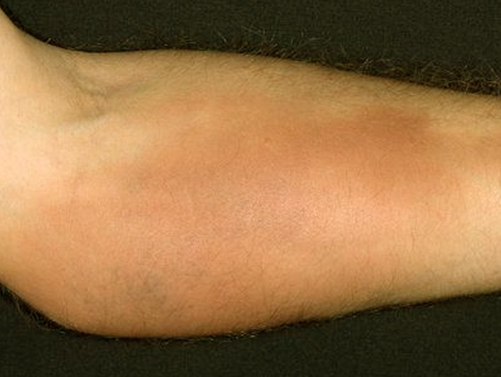 Phlebitis - Pictures, Symptoms, Causes, Treatment