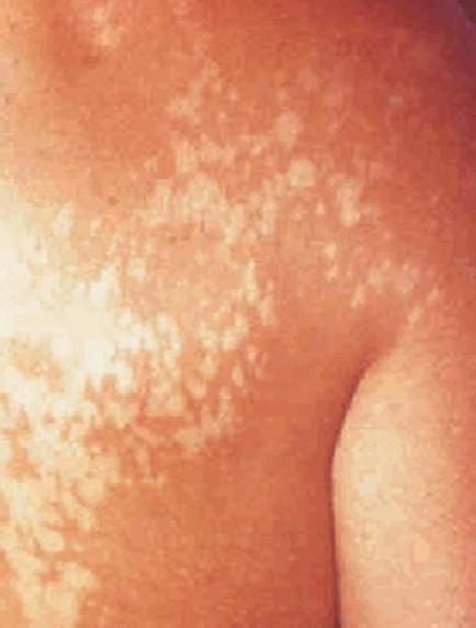 Brown recluse spider bite pictures symptoms treatment stages pictures - Pityriasis Alba Pictures Symptoms Causes Treatment