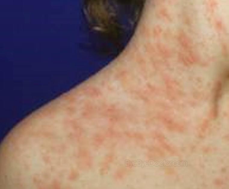 Strep Rash or Viral Scarlatina Rash - Healthy Skin Care