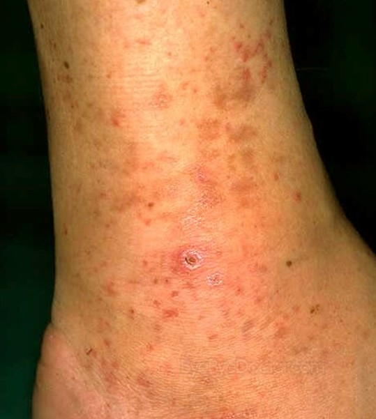 Red Itchy Bumps on Skin - Pictures, Causes, Treatment