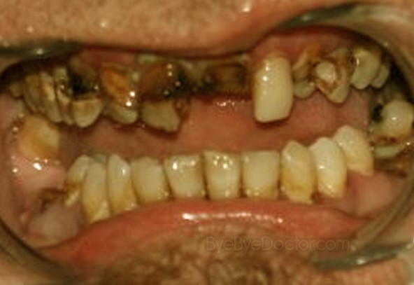 rotten teeth - pictures, symptoms, causes, treatment, Human Body