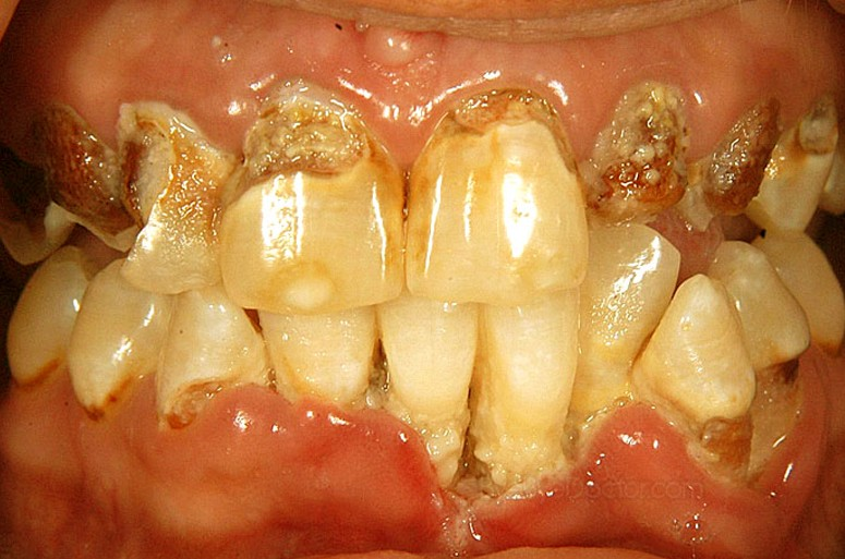 rotten teeth pictures