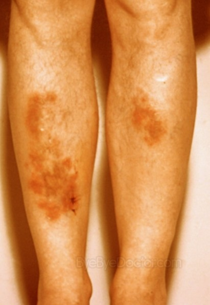 sarcoidosis pictures