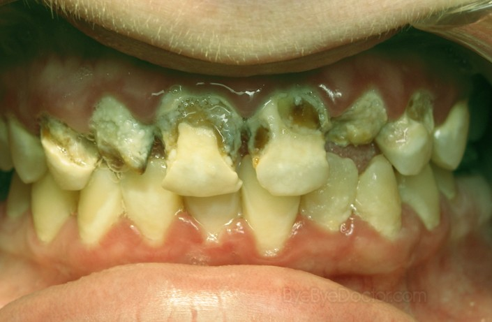 Decayed Teeth Extraction Tooth decay pictures