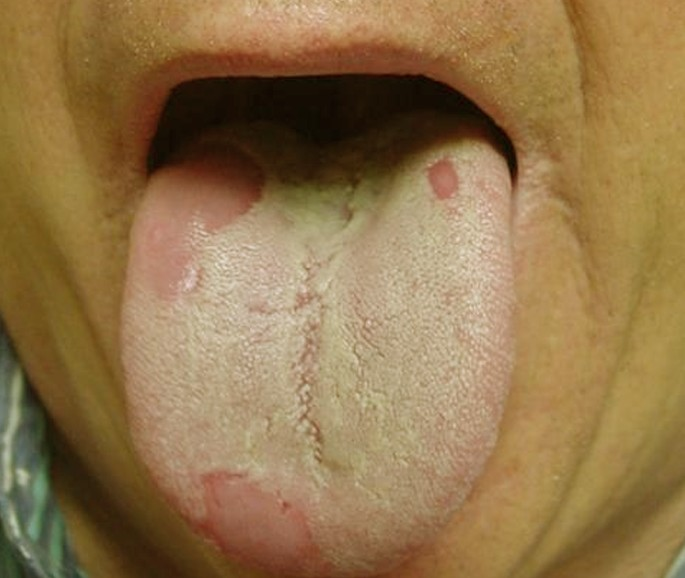 Back of Throat White Bumps On Tongue