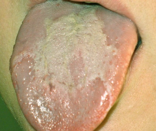 White Coating on Tongue Pictures