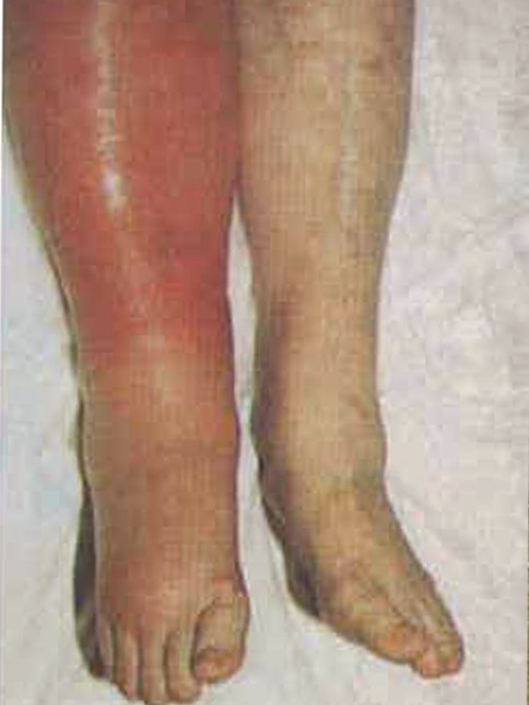 deep vein thrombosis - pictures, symptoms, causes, treatment, Human Body