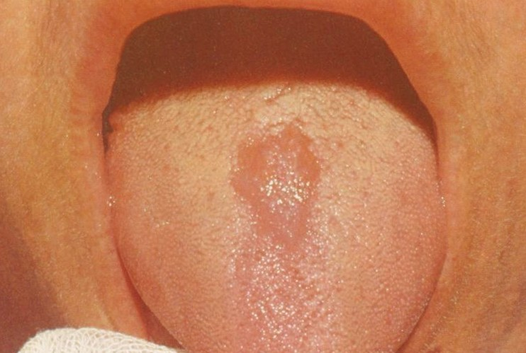 glossitis - symptoms, causes, treatment, pictures, Skeleton