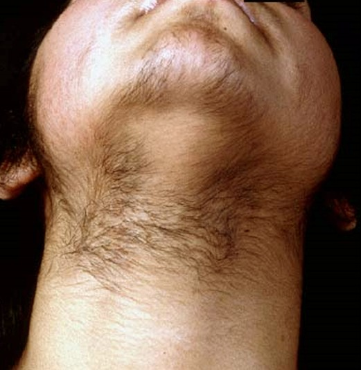 Hirsutism (excess hair growth in women) - UpToDate