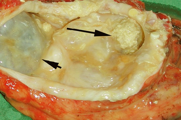 teratoma pictures