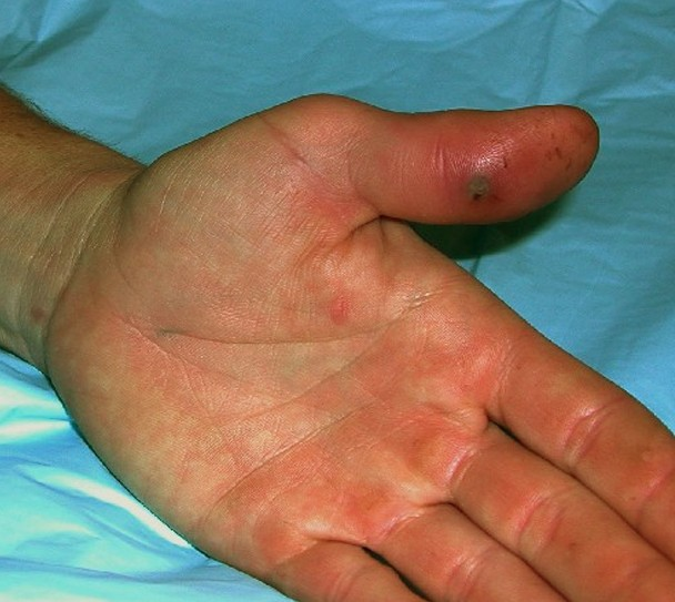 lymphangitis pictures