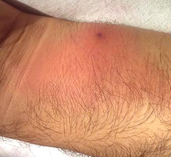 lymphangitis - pictures, symptoms, causes, treatment, Skeleton