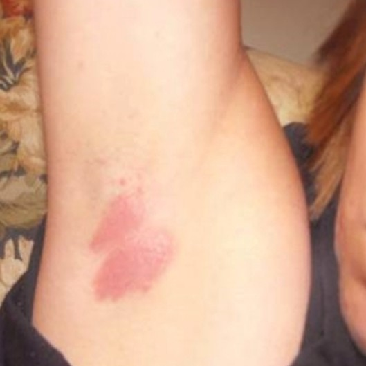 Underarm Rash - Pictures, Treatment, Symptoms, Causes