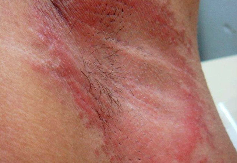 Underarm Rash Pictures Treatment Symptoms Causes