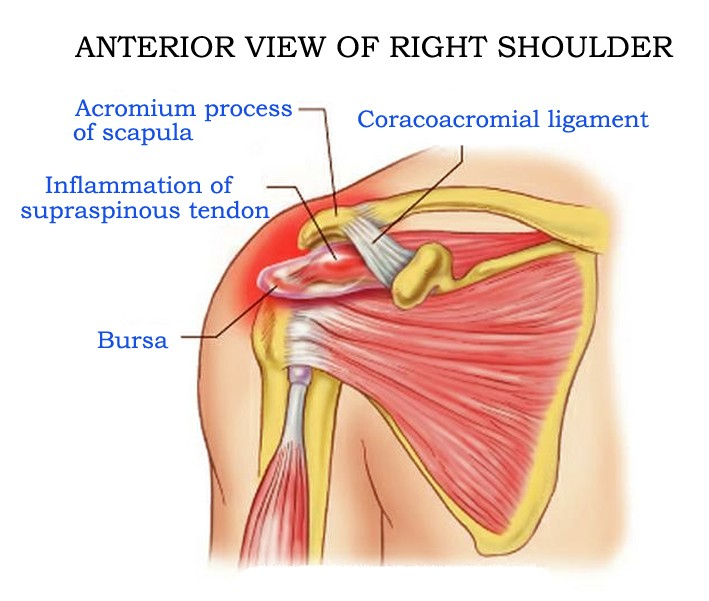 Supraspinatus Anatomy Function Tendinosis Exercises