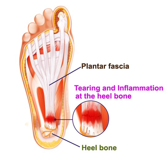 Plantar Fasciitis - Treatment, Exercises, Pictures, Stretches