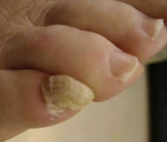 Think Toenails - Treatment, Causes, Home Remedies, Pictures