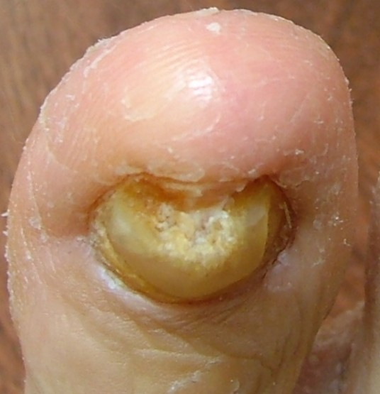 thick toenails pictures