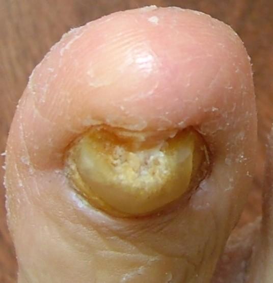 thick toenails pictures